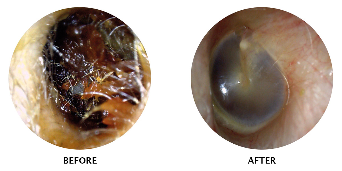 ear-wax-removal-before-and-after