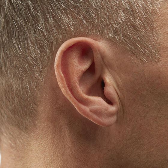 Invisible-in-canal (IIC) Hearing Aids - Benefits